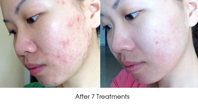 Before After Plasma Acne Treatments
