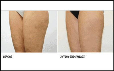 Before and after Venus Legacy Stretch Marks & Cellulite Removal Therapy