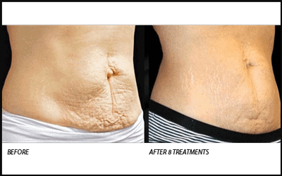 Before and After Venus Legacy Stretch Marks Removal