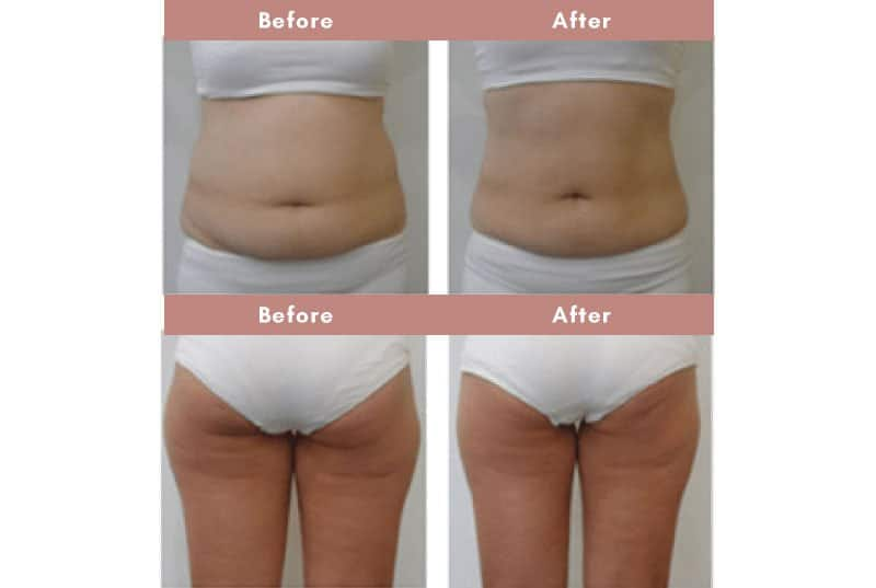 Before and After CryoSculpt fat freeze therapy