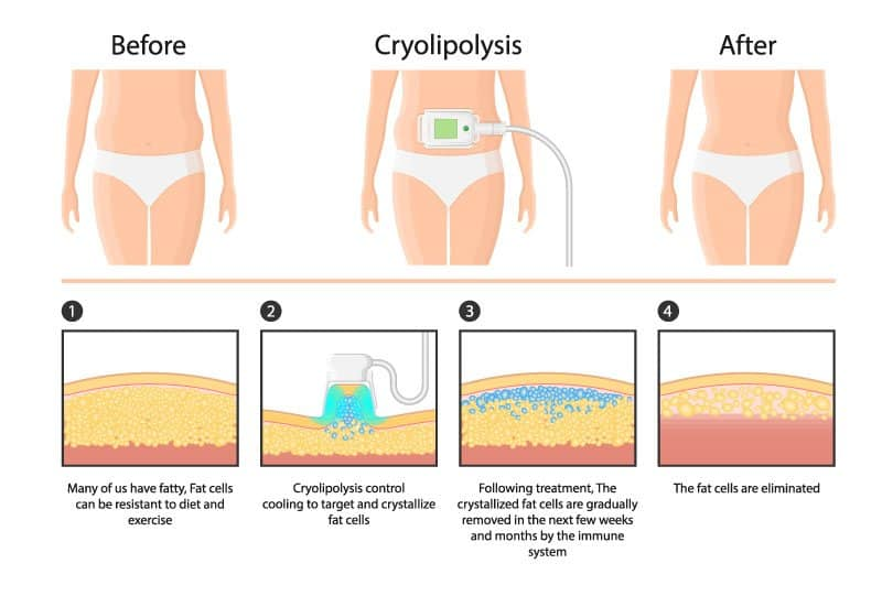 Before and After Cryolipolysis
