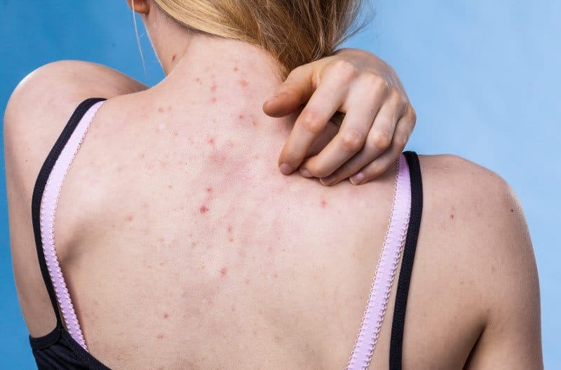 Acne on woman's back
