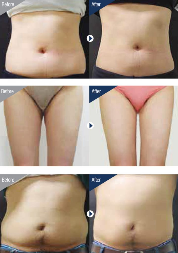 Before and After Clatuu 360 Fat Freezing