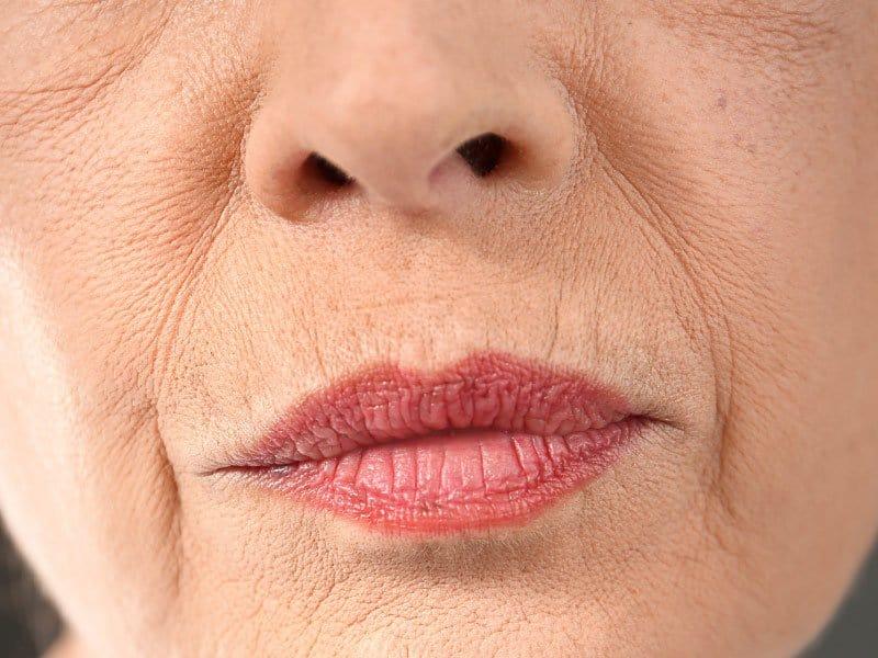 Naso Labial Folds