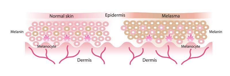 Normal and melasma skin