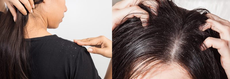Dry Irritated scalp