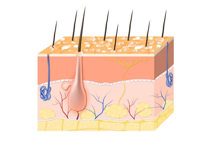 Dry flaky skin with dandruff
