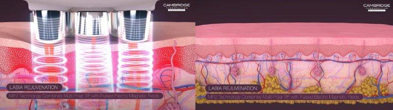 Labial Tightening Treatment