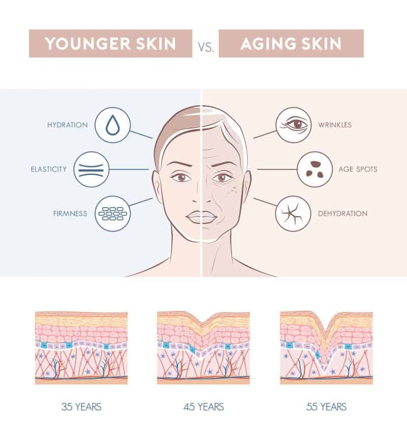 Younger and aging skin