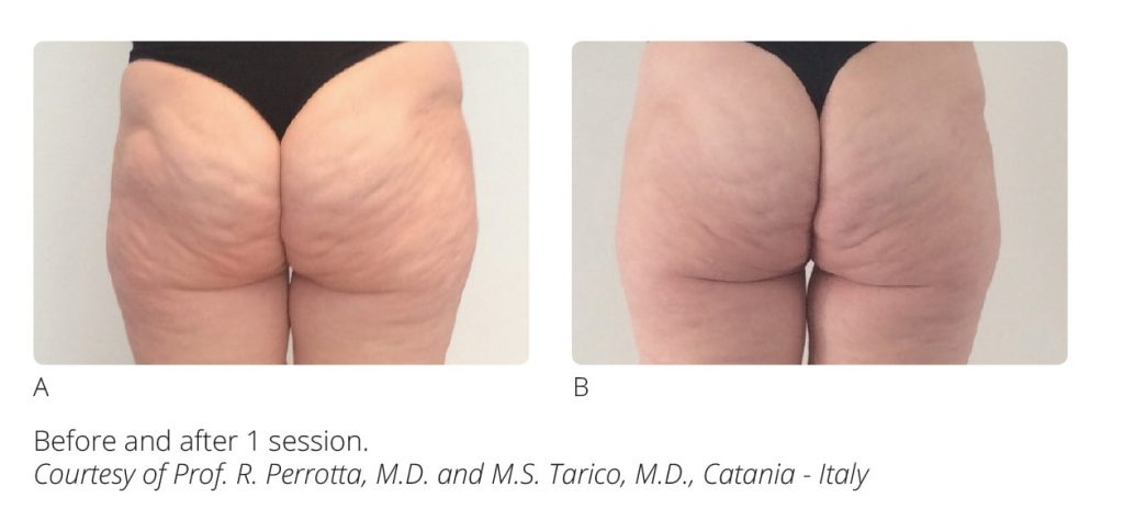 Before and After Onda Coolwaves Cellulite Treatment