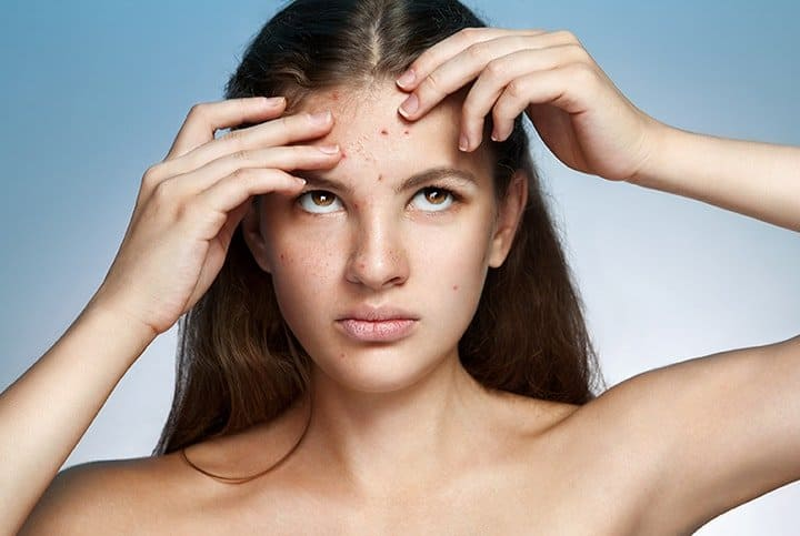 Causes and Triggers of Acne