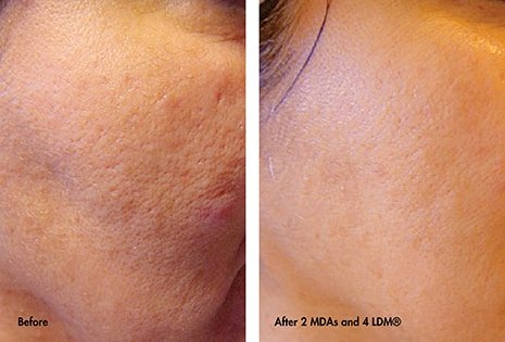 Combination with Micro-Dermabrasion before and after