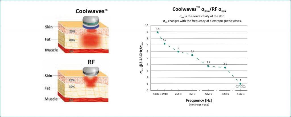 Onda Coolwaves RF