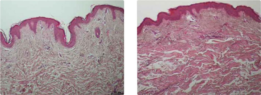 Onda Coolwaves Effect on Cellulite