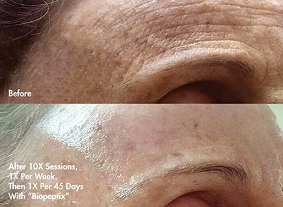 Integral skin improvement