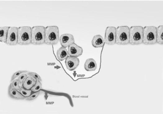 LDM® controls Bad enzymes MMPs