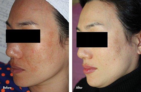 Dermatitis and pigmentation