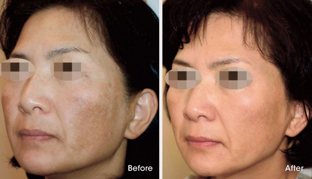 Melasma before and after treatment