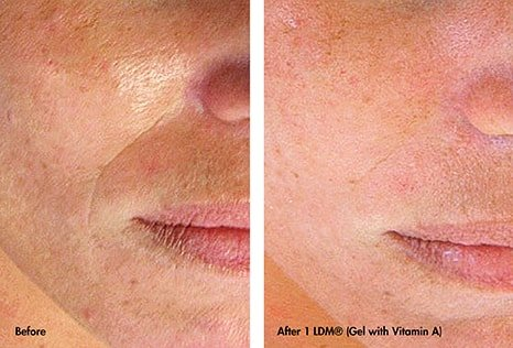 Nasolabial Folds before and after