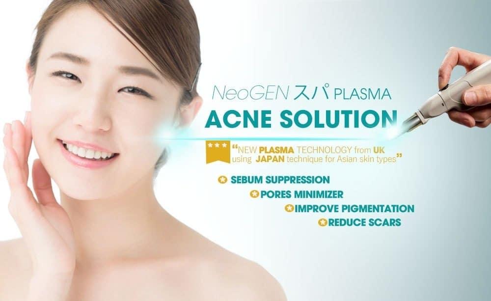 Acne Treatment Neogen Plasma Singapore