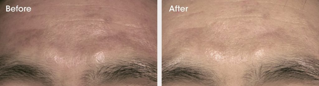 Post Inflammatory Hyperpigmentation before and after treatment