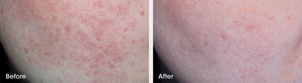 Redness before and after treatment