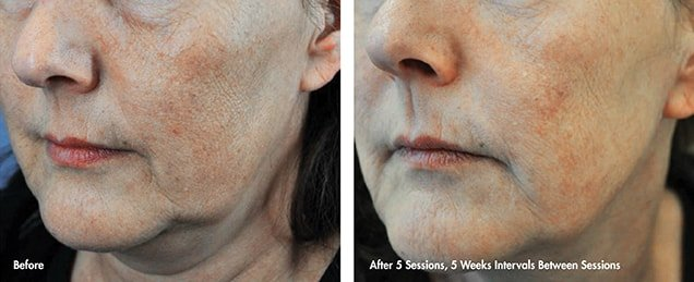 Before after LDM®-Tech Skin Rejuvenation treatment