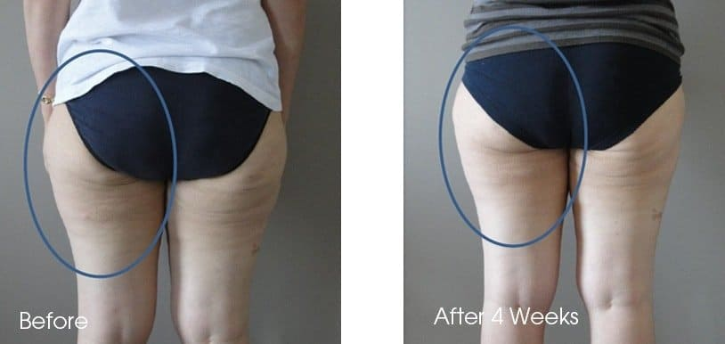 Sygmabody Singapore Before and After Results