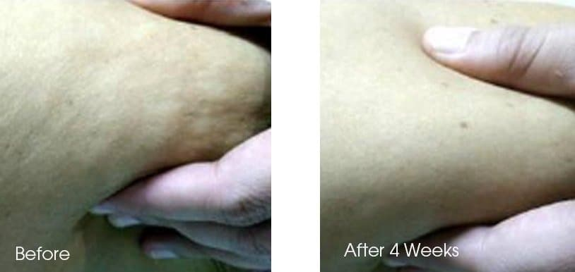 Before and After SygmaBODY Fat & Cellulite Removal Treatment