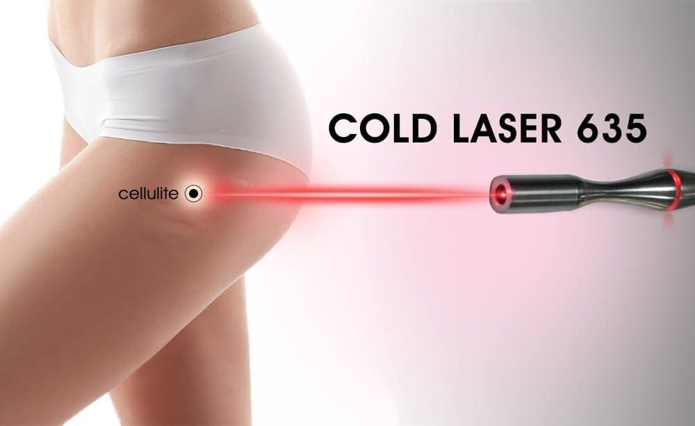 Cold Laser 635 Treatment on Cellulite
