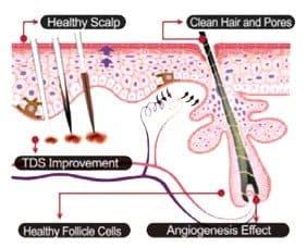 Glow + Genosys Scalp-treatment