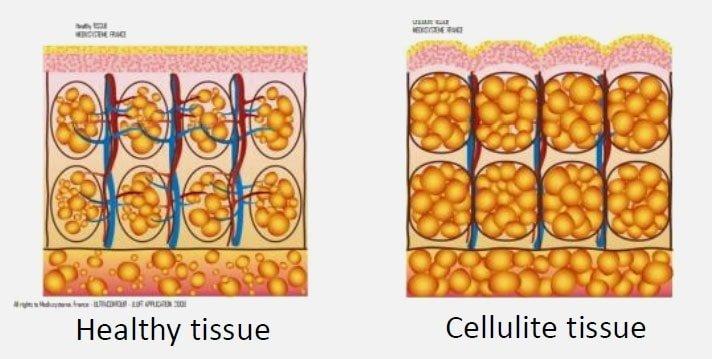 Healty Skin Vs Cellulite skin