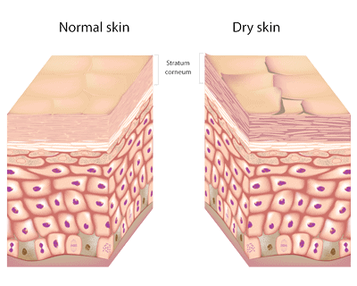 Normal and dry skin