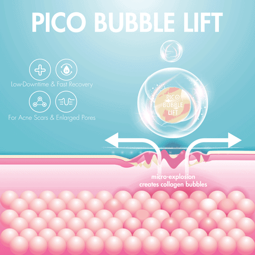 Pico laser bubble lift