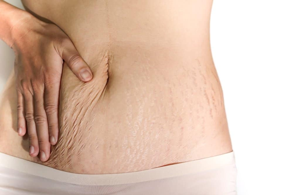 Stretch marks on woman's belly