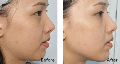 HIFU SygmaLIFT Face Lift before after