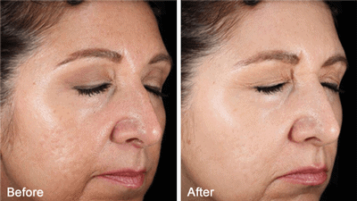Clinical Before and After Photo