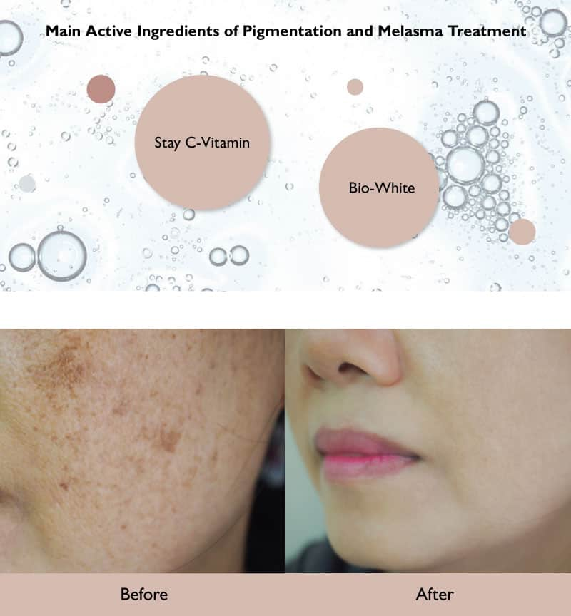 Main Active Ingredients of Pigmentation and Melasma Treatment