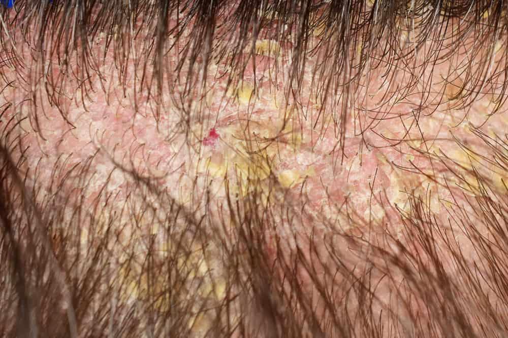 Scalp with Eczema