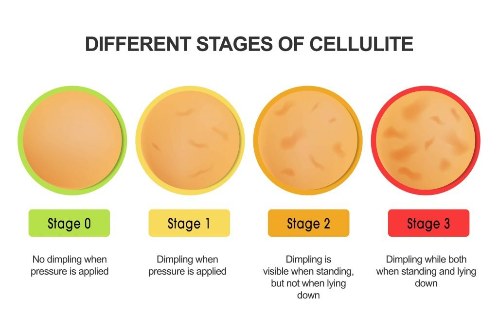 diagram on stages of cellulite development