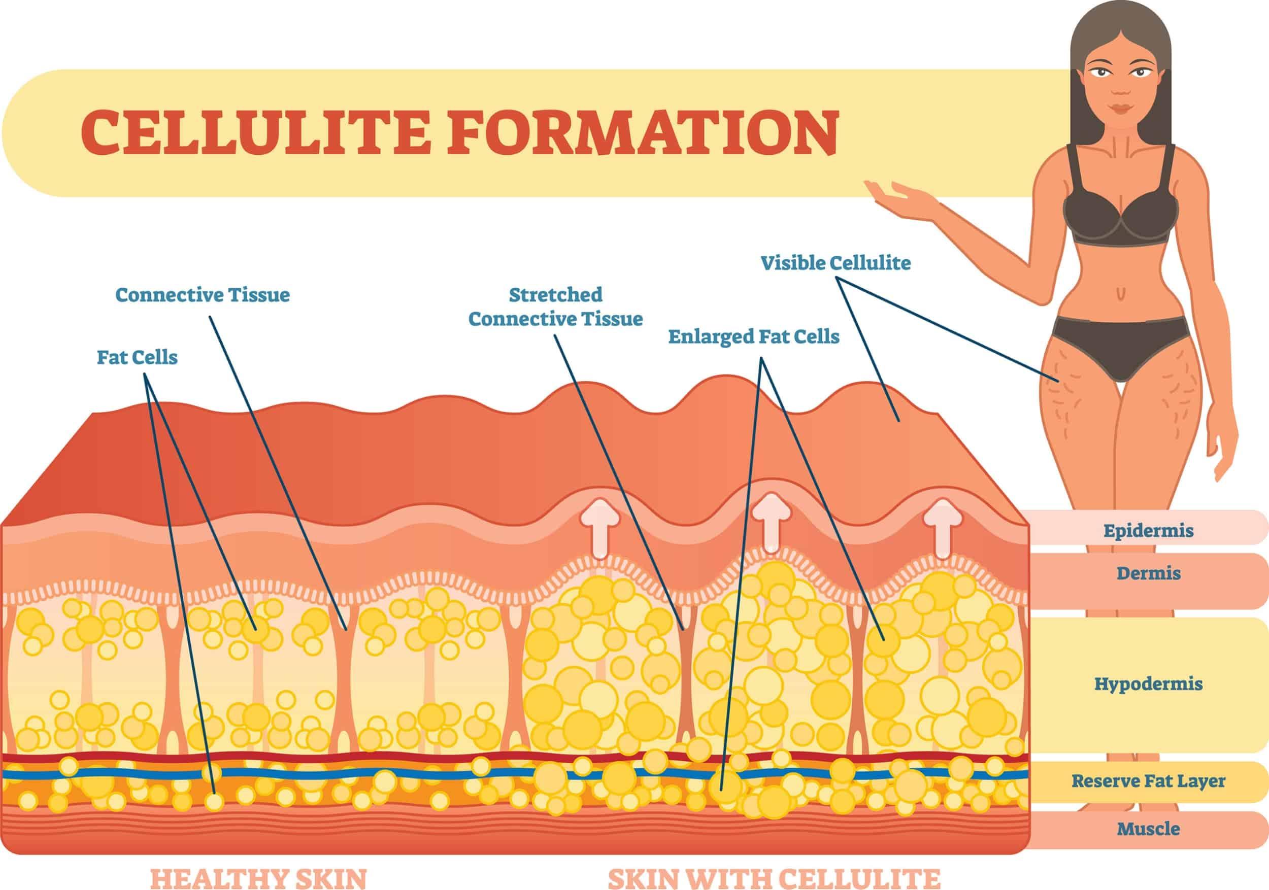cambridge therapeutics diagram get rid of cellulite