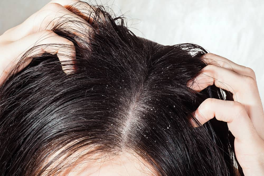 Dry & Itchy Scalp