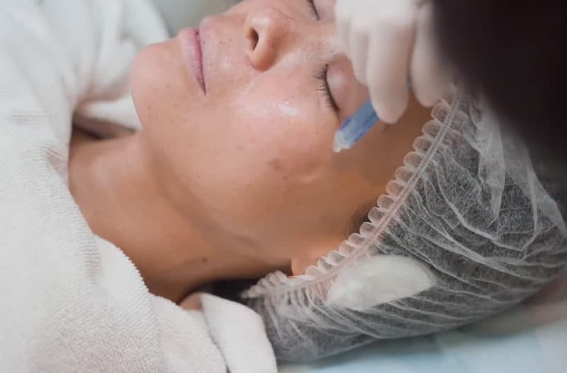 The Needleless Rejuran Procedure